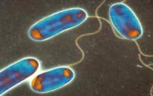 Legionalla cinsi bakterilerin mikroskobik görünümleri